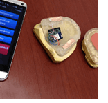 Smart mouth guard wins second-place in international competitions