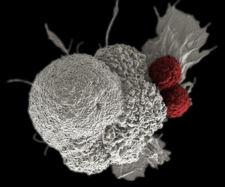 A pseudo-colored scanning electron micrograph shows two T-cells (red) attacking a cancer cell (white). Researchers are creating more powerful cancer treatments by editing the genes inside the T-cells.