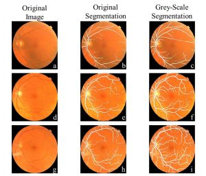 Comparison of Segmentation from input image